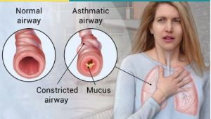 Asthma constricted airways explained